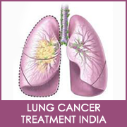 Advanced treatment at a low cost for Lung cancer in India