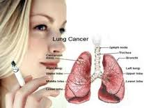 Lung cancer treatment in India with the best surgical facilities