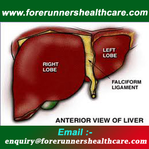 Affordable Liver Transplant in India