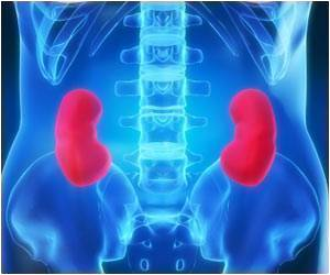 Cost of Incompatible Kidney Transplant India