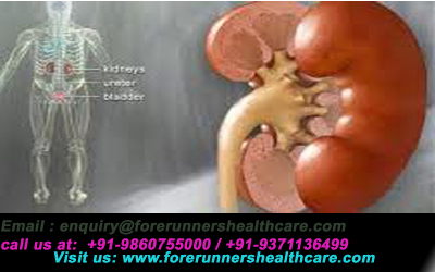 Low cost kidney transplant in India with advanced healthcare facilities